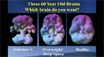 Change Your Brain Today